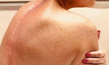 Σοκάρει πρώην παίκτρια ριάλιτι! Η ουλή στη σπονδυλική της στήλη ένα χρόνο μετά το χειρουργείο!