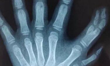 Κοριτσάκι γεννήθηκε με 13 δάχτυλα στα χέρια της (photos)