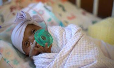 Συγκίνηση! Σύγχρονο «θαύμα» - Κοριτσάκι γεννήθηκε 245 γραμμάρια και κατάφερε να ζήσει (video)