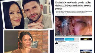 Μέγα θέμα στην Ισπανία οι καταγγελίες της Τζαβάρα για ξυλοδαρμό της από τον Παπαμακάριο! (photos)