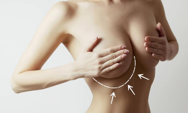 Φλεγμονώδης καρκίνος του μαστού: 6 συμπτώματα σε εικόνες