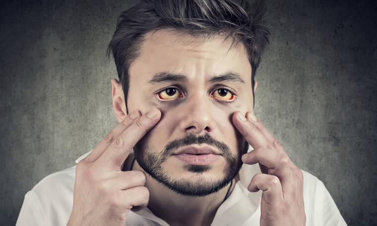 Κίτρινα μάτια: 10 πιθανές αιτίες σε εικόνες