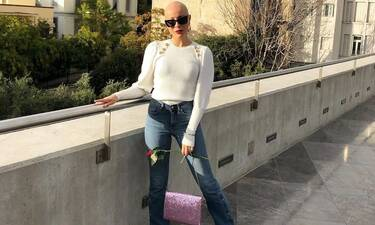 GNTM: Λυδία Κατσανικάκη: Δες το μοντέλο με την αλωπεκία με μακριά ξανθά μαλλιά και θα πάθεις πλάκα!
