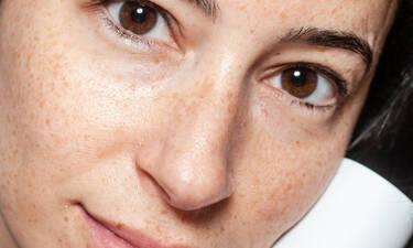 Μικροβίωμα του δέρματος: Τι είναι και τι να προσέξεις
