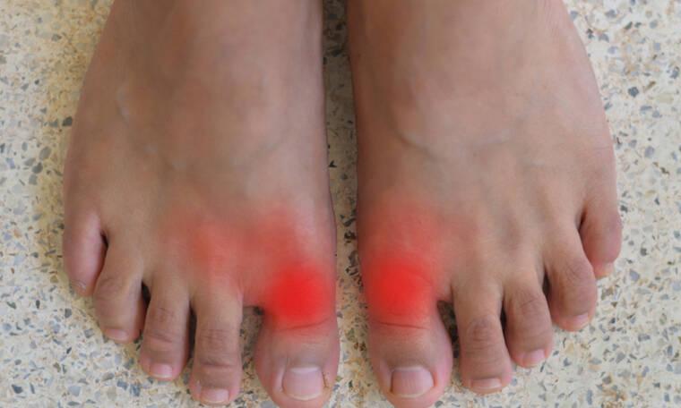 Ουρική αρθρίτιδα: Ποιοι κινδυνεύουν από τη φλεγμονώδη νόσο των αρθρώσεων (εικόνες)