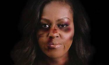 Μισέλ Ομπάμα,Χίλαρι Κλίντον,Μπριζίτ Μακρόν: με μώλωπες στο πρόσωπο