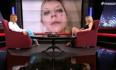 Πωλίνα Απέργη: Έπεσε θύμα ξυλοδαρμού την ώρα που ήταν στην πίστα και μιλά πρώτη φορά on camera!
