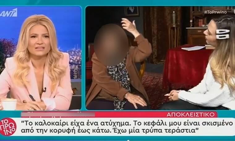 Ελληνίδα ηθοποιός αποκαλύπτει: «Είχα ένα ατύχημα και ήμουν μέσα σε μια λίμνη αίματος» (video)