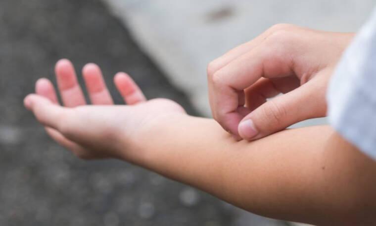 Φαγούρα στο δέρμα: 11 πράγματα που αποκαλύπτει για την υγεία (εικόνες)