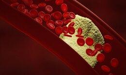 Πρόβλημα στην κυκλοφορία του αίματος: Τα σημάδια που δεν πρέπει να αγνοήσετε (εικόνες)