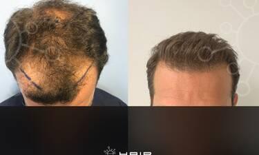 Αποκλειστικό: Πρώην παίκτης του Survivor έκανε μεταμόσχευση μαλλιών! (pics+vid)