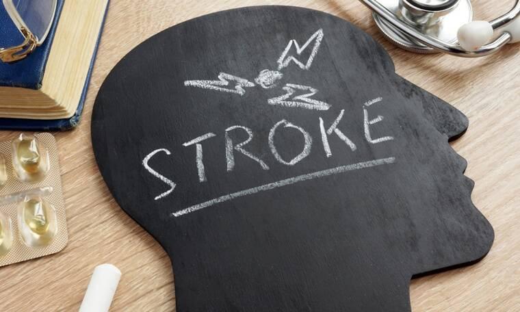 Εγκεφαλικό: Ποιες εξετάσεις περιλαμβάνει ο προληπτικός έλεγχος (εικόνες)