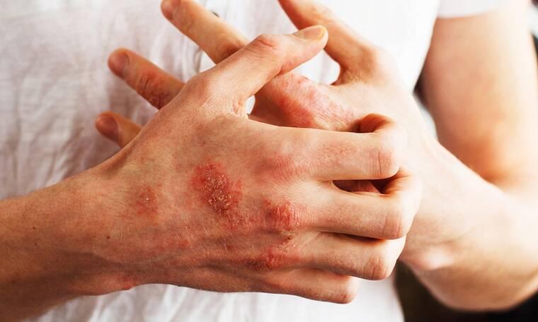 Έκζεμα: Γιατί και πόσο αυξάνει τον κίνδυνο κατάγματος