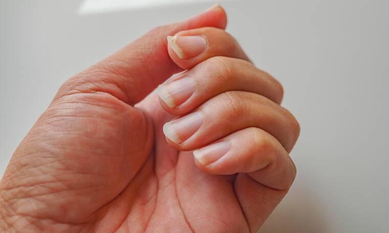 Νύχια: Οι 7 καθημερινές συνήθειες που τα καταστρέφουν (pics)