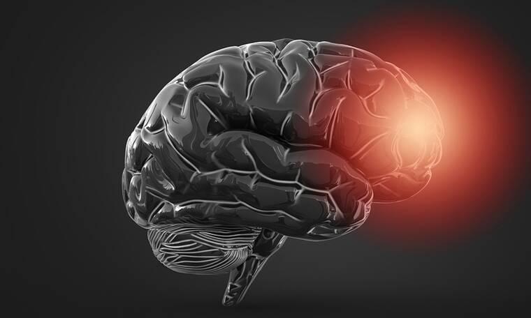 Εγκεφαλικό: Ποιοι ανήκουν στις ομάδες υψηλού κινδύνου (εικόνες)