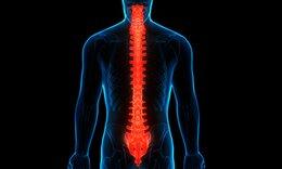 Νωτιαίο εγκεφαλικό επεισόδιο: Τι είναι και με ποια συμπτώματα εκδηλώνεται (εικόνες)