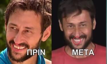 Survivor: Ο Πάνος Καλίδης έφτιαξε το ψεύτικο δόντι του στον Άγιο Δομίνικο - Το πριν και μετά!