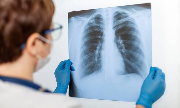 Γήρανση πνευμόνων: Οι βασικοί παράγοντες κινδύνου (εικόνες)
