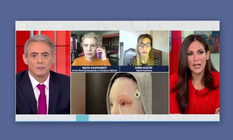 Επίθεση με βιτριόλι: Όλα όσα είπε η δημοσιογράφος που πήρε την πρώτη συνέντευξη από την Ιωάννα