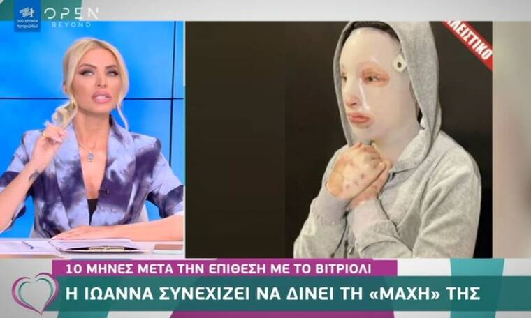 Επίθεση με βιτριόλι: Η Ιωάννα συνεχίζει να δίνει μάχη - Αυτός είναι ο λόγος που φορά τη μάσκα