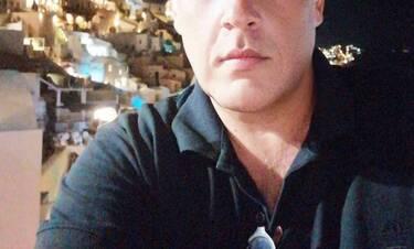 Πασίγνωστος Έλληνας ηθοποιός έκανε μεταμόσχευση μαλλιών! (photos)
