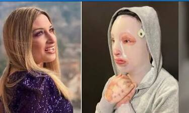 Επίθεση με βιτριόλι: Εξοργισμένη η Ιωάννα - «Καλοστημένη απολογία που δεν προσφέρει τίποτα»