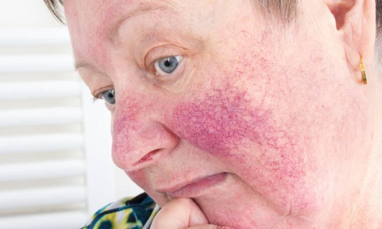 Ροδόχρους ακμή: Αιτίες και συμπτώματα της ακμής των ενηλίκων (εικόνες)