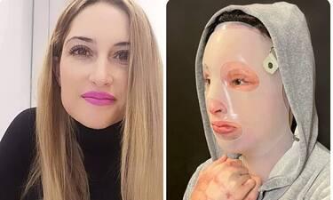 Επίθεση με βιτριόλι: Πέρασε ένας χρόνος και η Ιωάννα ξεσπά: «Μου στέρησε τη ζωή»
