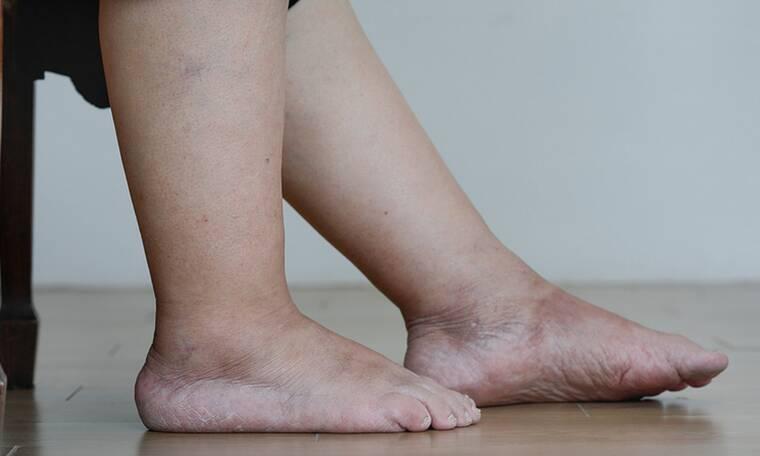 Πρησμένα πόδια: Τι να κάνετε για να υποχωρήσει το οίδημα (εικόνες)