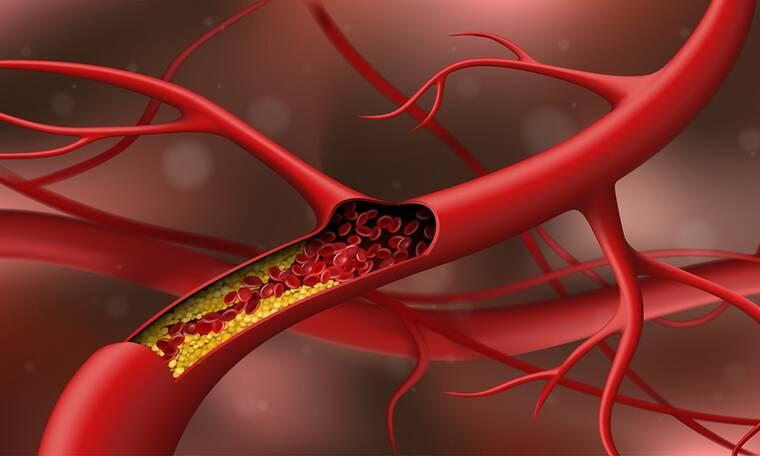 Χοληστερίνη: 13 φυσικοί τρόποι για να τη μειώσετε (video)