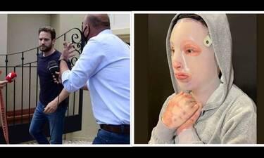 Γλυκά Νερά: Η Ιωάννα που δέχθηκε επίθεση με βιτριόλι ξεσπά μετά την ομολογία του 32χρονου πιλότου