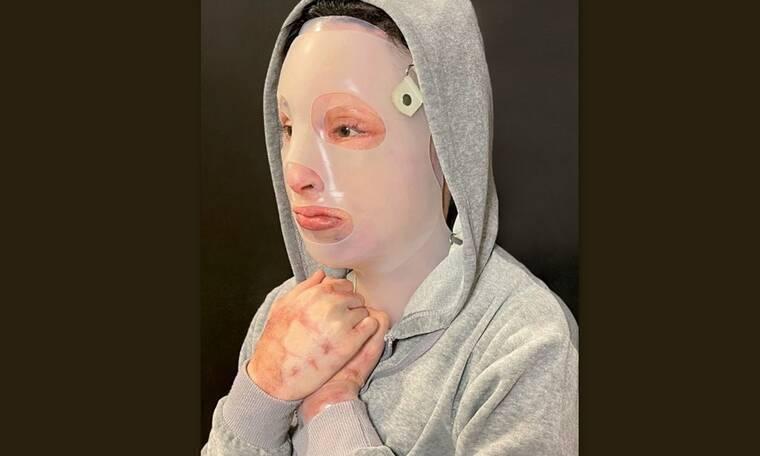 Ιωάννα Παλιοσπύρου για νέα επίθεση με βιτριόλι: «Οι εικόνες με τα ράσα και τα αίματα με σόκαραν»