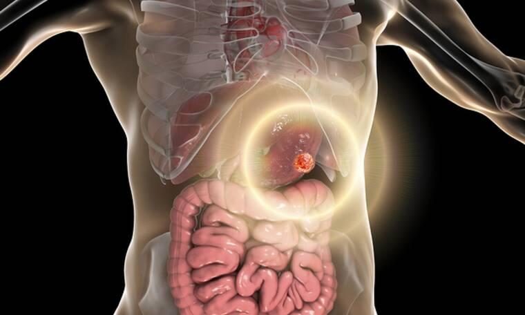Καρκίνος του στομάχου: Οι πιο σοβαροί παράγοντες κινδύνου (εικόνες)