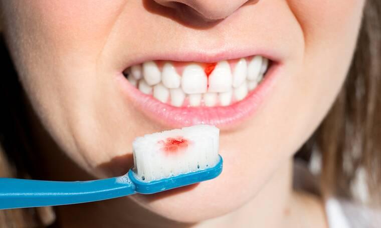 4 σημάδια ότι βουρτσίζετε τα δόντια σας με λάθος τρόπο (video)